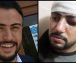 Wegen einem kritischen Facebook-Beitrag wurde der Journalist Karwan Baadrî von PDK-Milizen niedergeprügelt